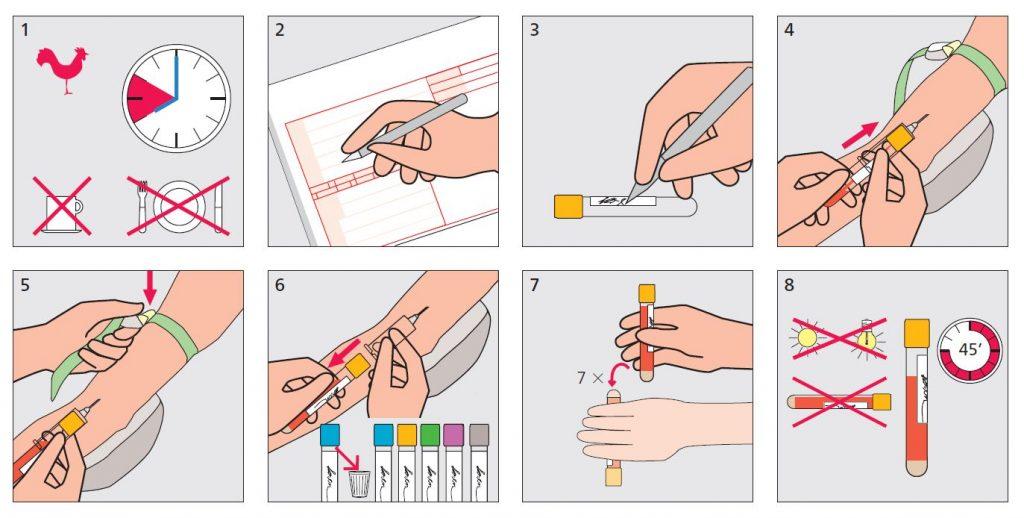 Priprema za uzimanje uzorka krvi