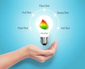 Fibro Test i Fibro Max Test - neinvanzivna alternativa za biopsiju jetre 1