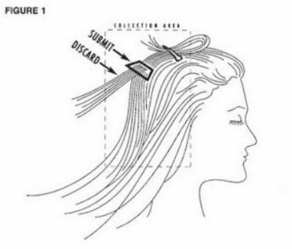 Priprema pacijenta za uzorkovanje za mineralnu analizu kose