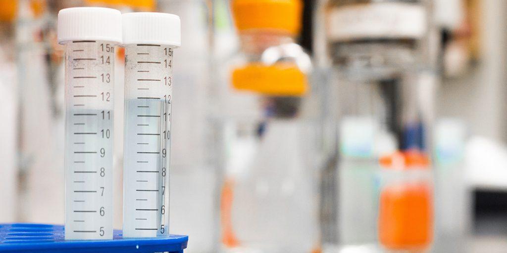 Kako izmeriti nivo kortizola - hormona stresa, pri buđenju? 2