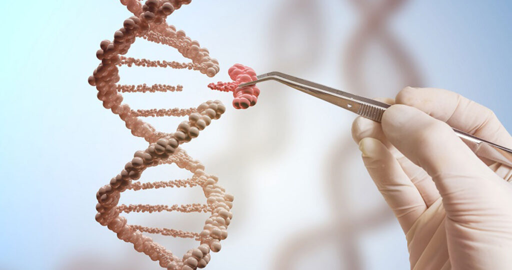 Mikrodelecije Y hromozoma – uzročnik steriliteta kod muškarca