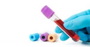 Anti Milerov Hormon - AMH